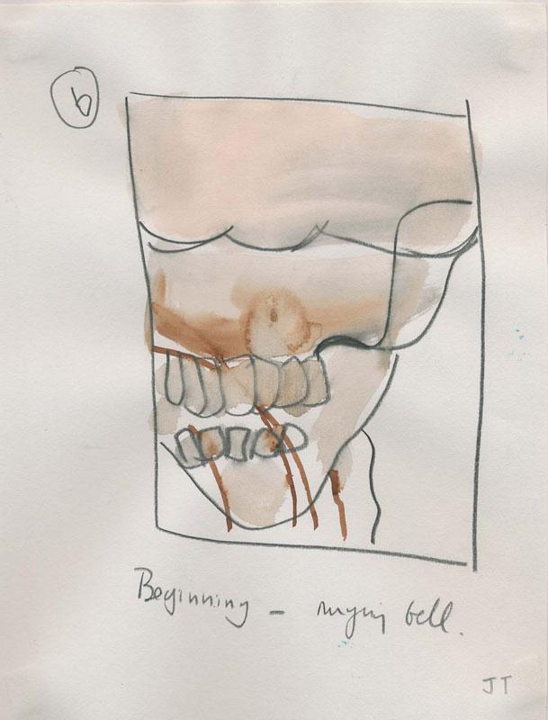 Angiogram - June 2002