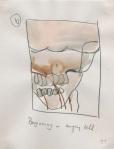 Angiogram June 2002